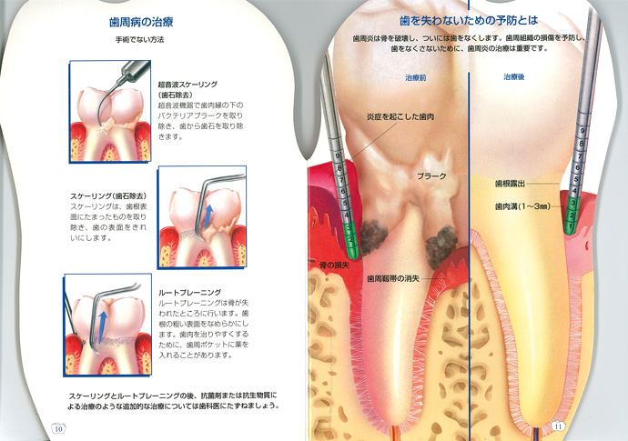 抗生 歯 周 物質 病